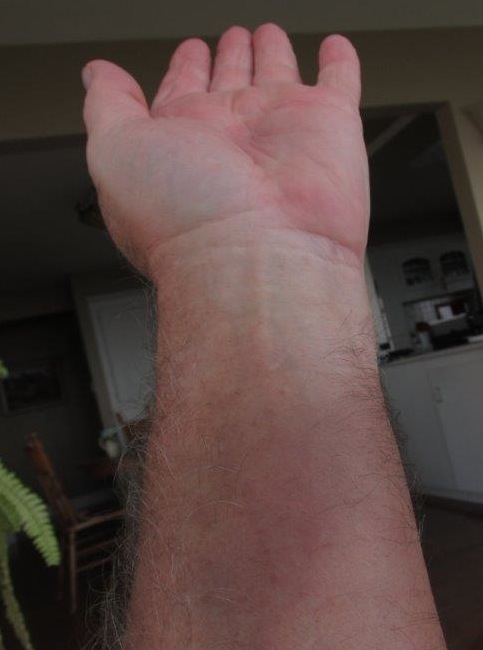 This is WELL over a week of healing. His entire hand and arm was swollen and bruised. I CAN'T believe we didn't get a picture when it was twice this size and in TECHNICOLOUR!